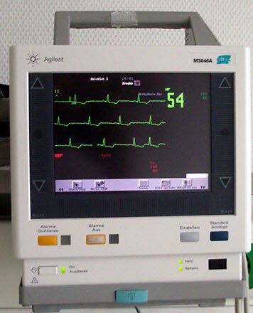 Electronic Cardiac Monitor